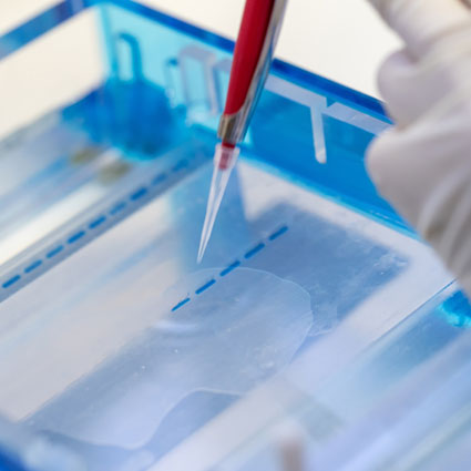 qPCR for Gene Expression Analysis